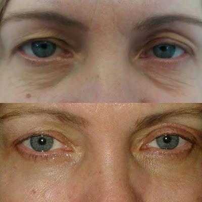 Foto del prima e del dopo l'intervento di Blefaroplastica