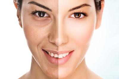 Facial Anti-Aging Mengencangkan Muka dengan Kalogen