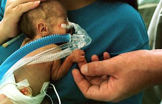 Global Prematurity Day: Preterm Causes, Symptoms, Prevention, Management, Analysis