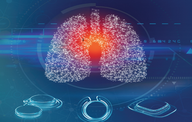 Dynamic technology poised to help millions of COPD sufferers.