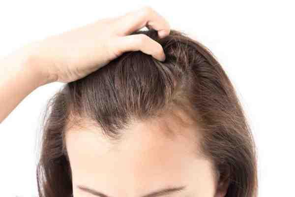 انبات الشعر في الفراغات