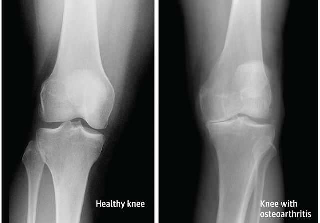 How Arthritis Can Affect the Knee | El Paso, TX Chiropractor