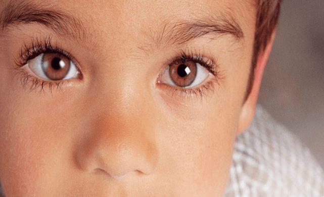 Terapi Mata Juling
