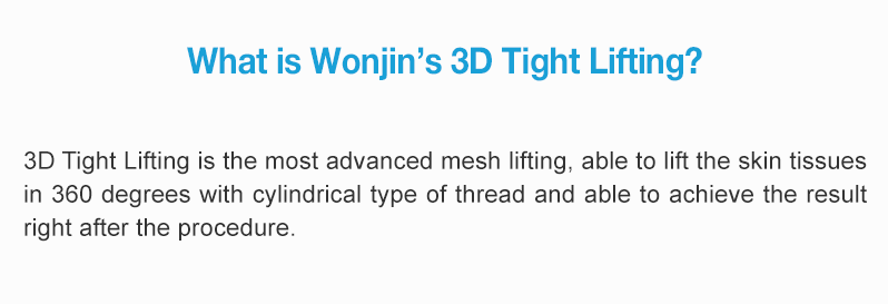 What is Wonjin's 3D Tight Lifting?  3D Tight Lifting is the most advanced mesh lifting, able to lift the skin tissues in 360 degrees with cylindrical type of thread and able to achieve the result right after the procedure.
