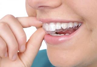 Làm trắng răng ở đâu tốt hiện nay ?