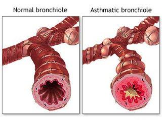 Faktor, Gejala, Diagnosis, dan Cara Pengobatan Asma bronkiale
