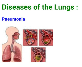 DISEASES OF THE   LUNGS