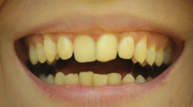 Hindari 6 Makanan dan Minuman Ini, Karena Dapat Membuat Gigi Anda Kuning