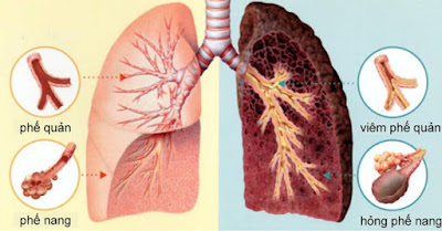 Bệnh ung thư phổi rất nguy hiểm đối với sức khỏe người bệnh