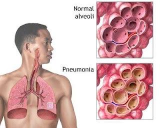 Apa itu penyakit radang paru-paru atau lebih di kenali sebagai paru-paru berair?