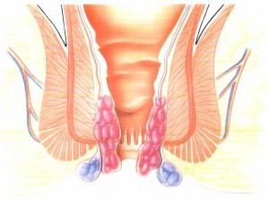 Benjolan kecil sekitar anus pasca operasi hemoroid