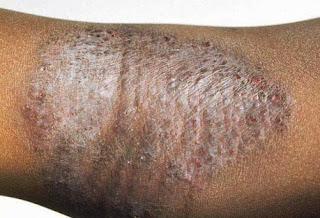 Foto Cara ampuh atasi penyakit eksim