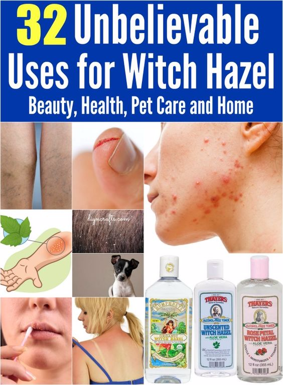 32 Unbelievable Uses for Witch Hazel: Beauty, Health, Pet Care and Home