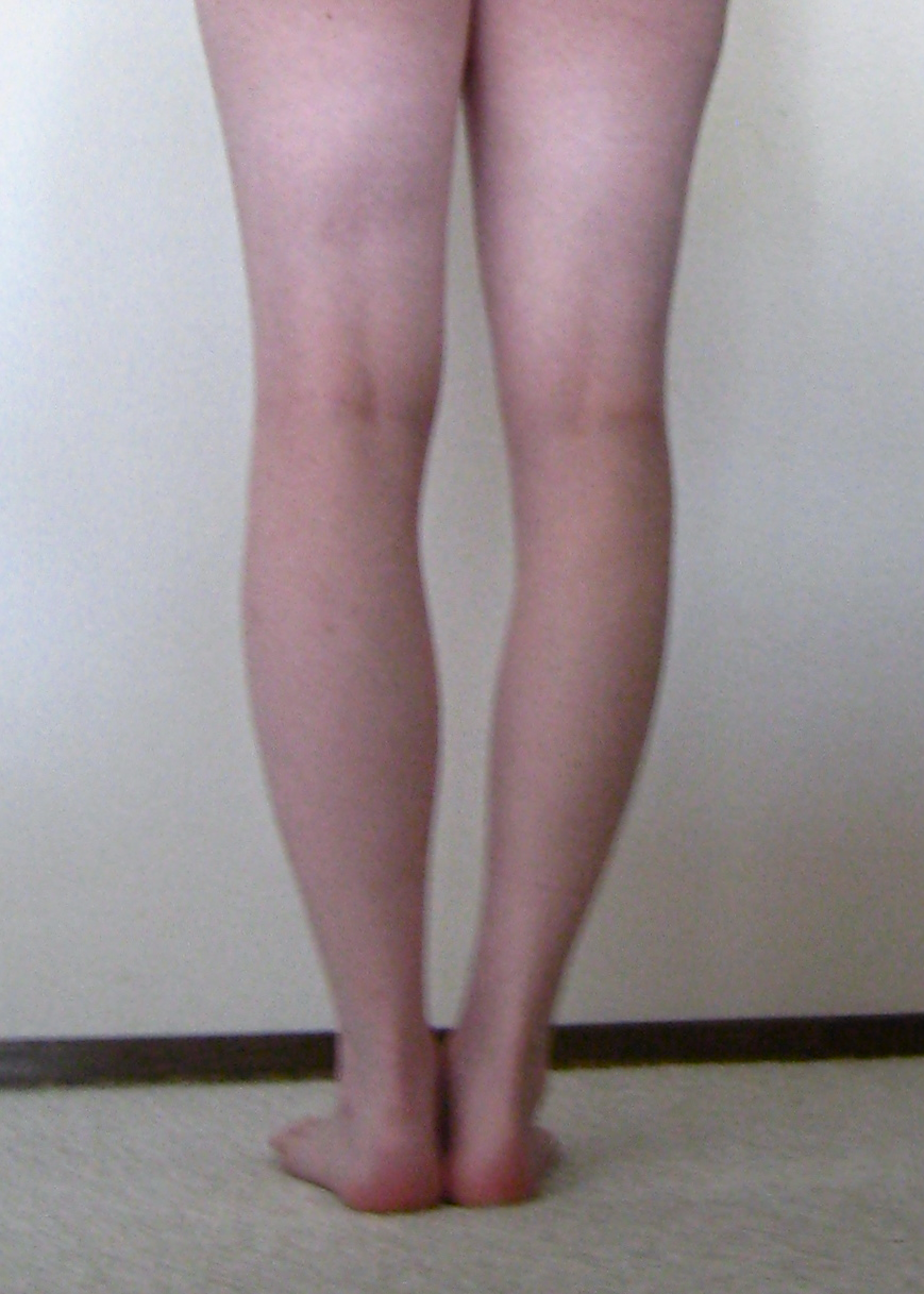 Calf muscle size difference