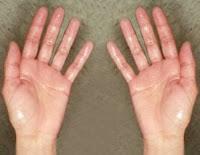 Bahaya Telapak Tangan Berkeringat