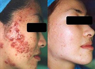 Jerawat bandel hilang dengan florin skin care terbukti