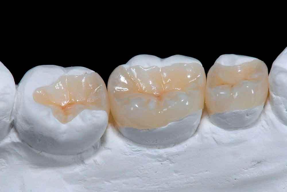 Incrustações Dentárias