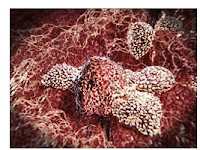 The Importance of Cancer Research in Immunotherapy