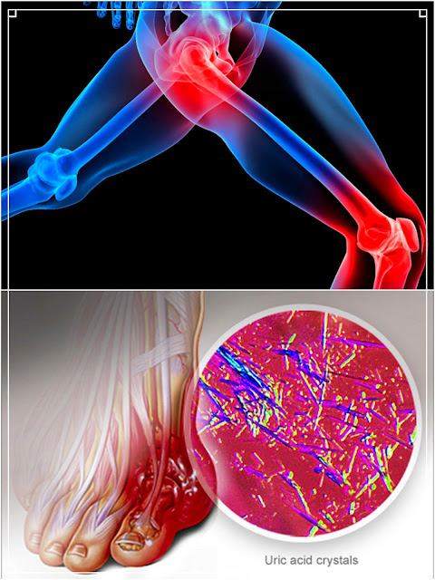 gout uric crystals Buildup of uric acid crystals in a joint causes gouty arthritis gout symptoms and signs include joint pain, swelling, heat, and redness read about gout diet, medication, treatment, and remedies.