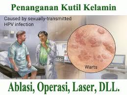 Pengobatan Operasi Kutil Kelamin Dokter