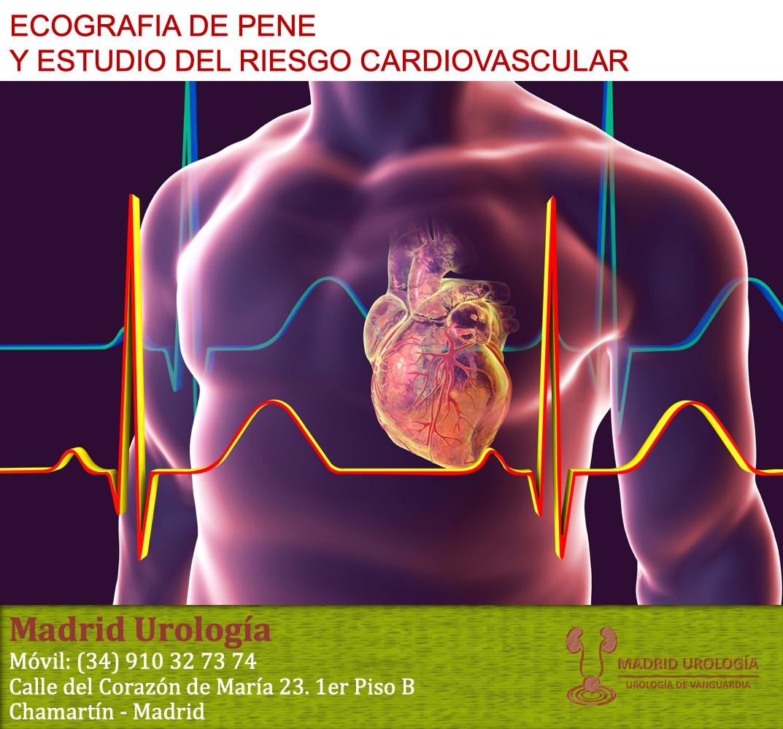 disfunción eréctil cardiopática