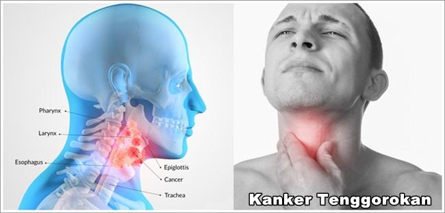 Obat Kanker Tenggorokan Stadium 3 (Recommended)