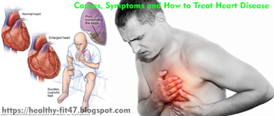 Causes, Symptoms and How to Treat Heart Disease