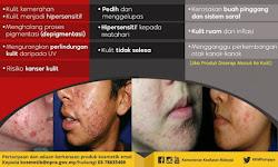 Bahaya Kosmetik Mengandungi Merkuri, Hydroquinone Dan Tretinoin
