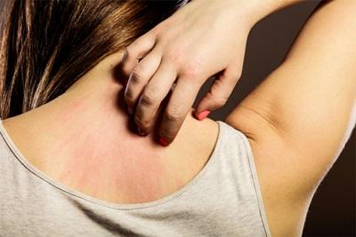 Cara Mengobati Dermatitis dengan Cepat