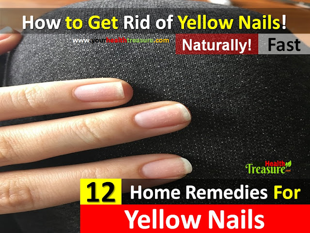 How To Cure Yellow Nails Naturally