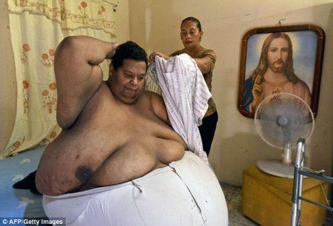 Ο παχύτερος άνδρας της Λατινικής Αμερικής: Ζυγίζει 400 κιλά και χρειάζονται 20 άτομα για να τον μετακινήσουν (PHOTOS)