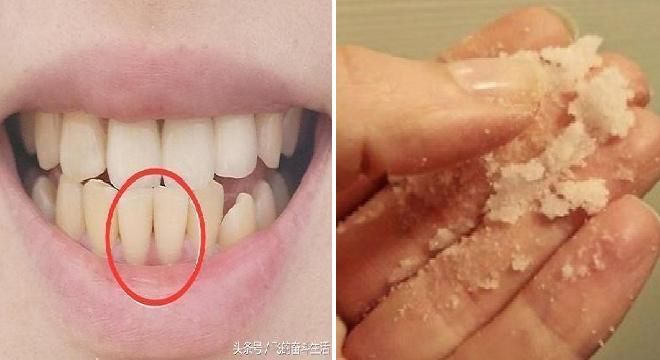 Ini Cara Menghilangkan Karang Gigi Membandel Dengan Cara Mudah Dan