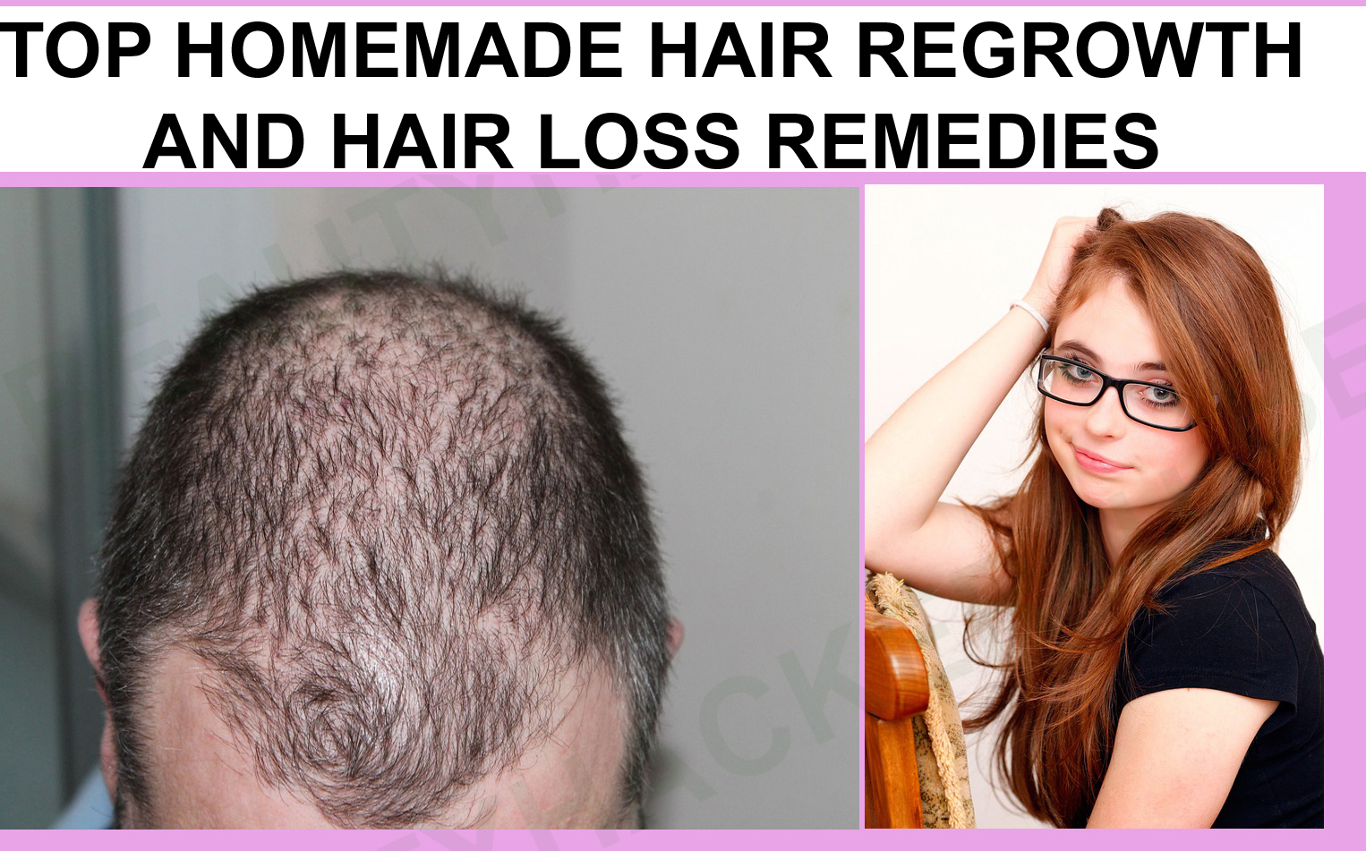 Home remedies for hair regrowth in the scalp