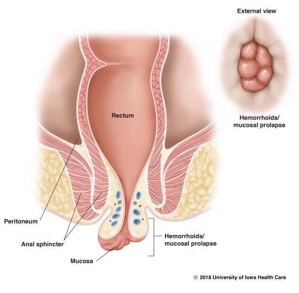 Hemorroides internas trombosadas sintomas