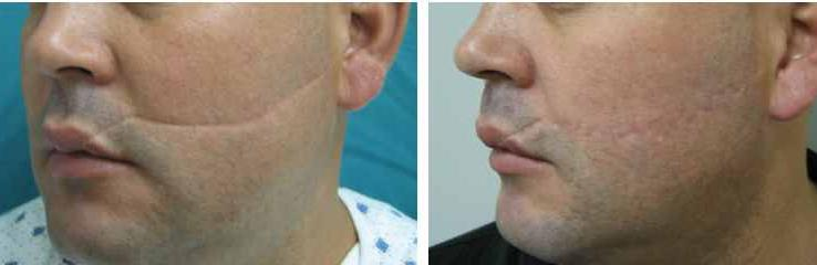 Buy Revitol Scar Removal Cream For Sale In Malaysia