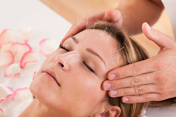 Some Things To Know About Acupuncture.