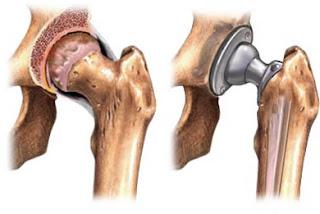 http://www.drbirennadkarni.com/conditions/arthritis-management/total-hip-replacement/