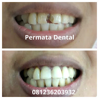 gambar gigi sebelum dan sesudah diperbaiki dengan veneer