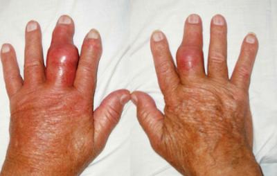 Bệnh Gout là gì và nguyên nhân nào dẫn đến bệnh gout?