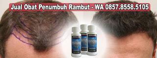 Jual Obat Penumbuh Rambut Dengan Cepat Minoxidil