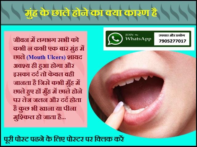 मुंह के छाले होने का क्या कारण है