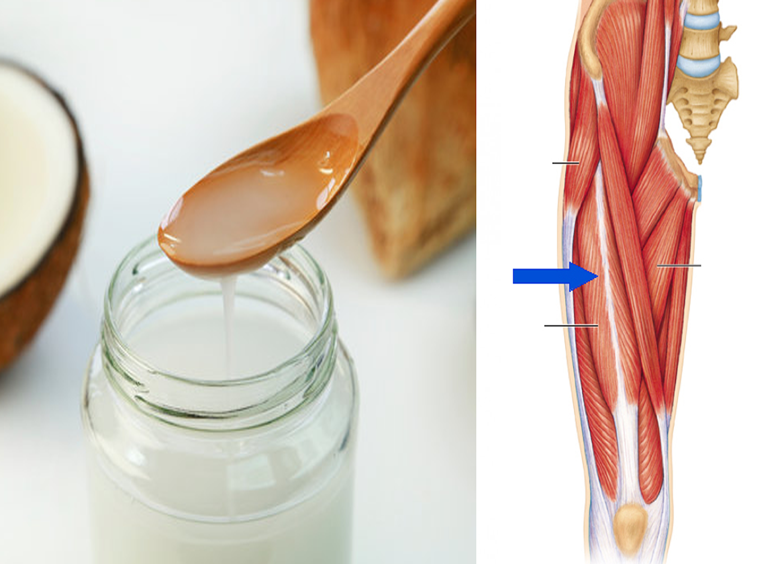 How long does it take for coconut oil to remove Cellulite