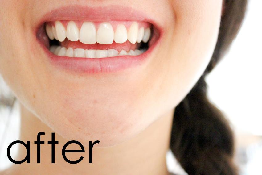 Pin Test Hydrogen Peroxide Teeth Whitening