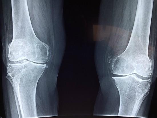 Osteoporose na mulher