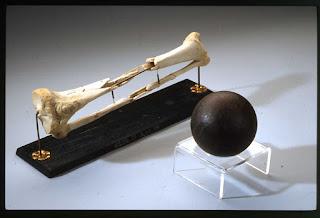 Histoire du boulet de canon os cassé par boulet de canon