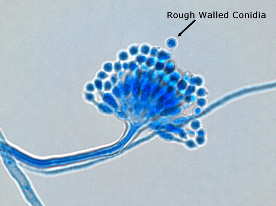 Fun With Microbiology (What's Buggin' You?): Aspergillus ...  Fun With Microb...
