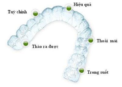 Một vài lưu ý khi niềng răng invisalign