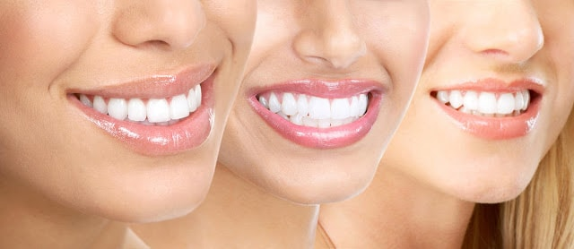 Cosmetic_dental_treatments