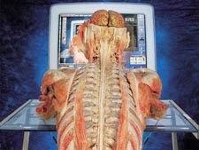 pricina-bolesti-chrbtice