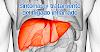 Síntomas de una inflamación hepática y cómo tratarla naturalmente